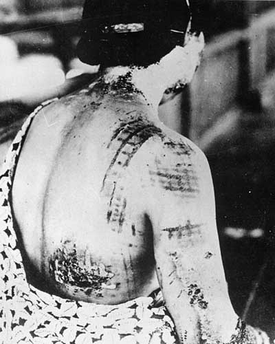 Consequences Of Fall Out From Atomic Bombings Of Hiroshima And Nagasaki