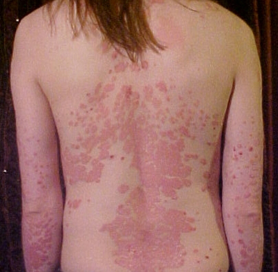 Psoriasis-And-Heredity